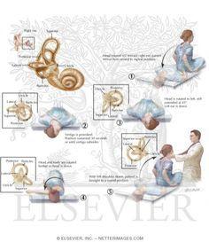 epley maneuver instructions mayo clinic