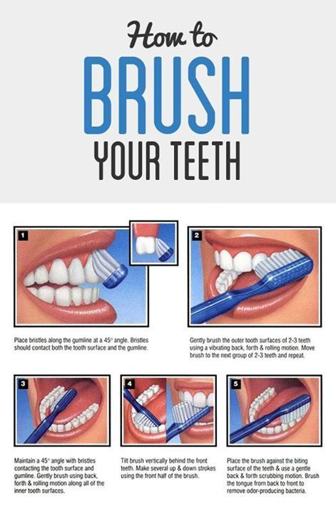 oral hygiene instructions posters